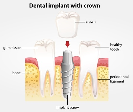 Repair and Improve Your Smile with Dental Implants