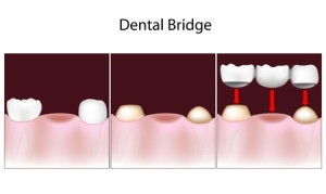 Dental Bridges | Smith and Cole Dentistry