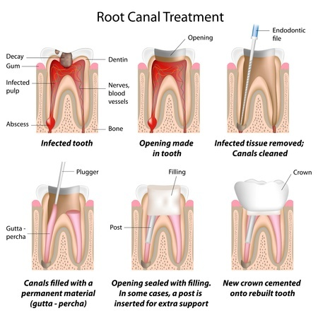 Root Canal | Smith and Cole Dentistry