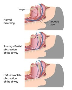 Sleep Apnea | Smith and Cole Dentistry