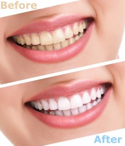 Teeth Whitening | Smith and Cole Dentistry