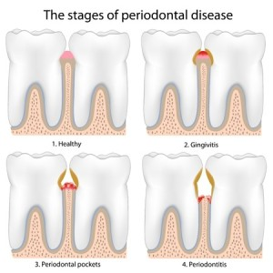 Periodontal Disease | Smith and Cole Dentistry