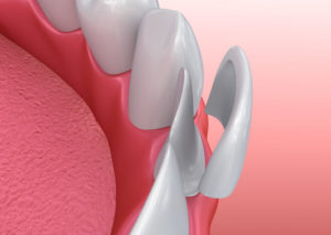 Porcelain | Smith and Cole Dentistry